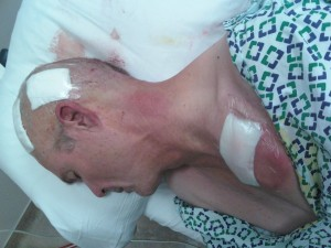 Post surgery, after stimulator implantation.  I've had better days.
